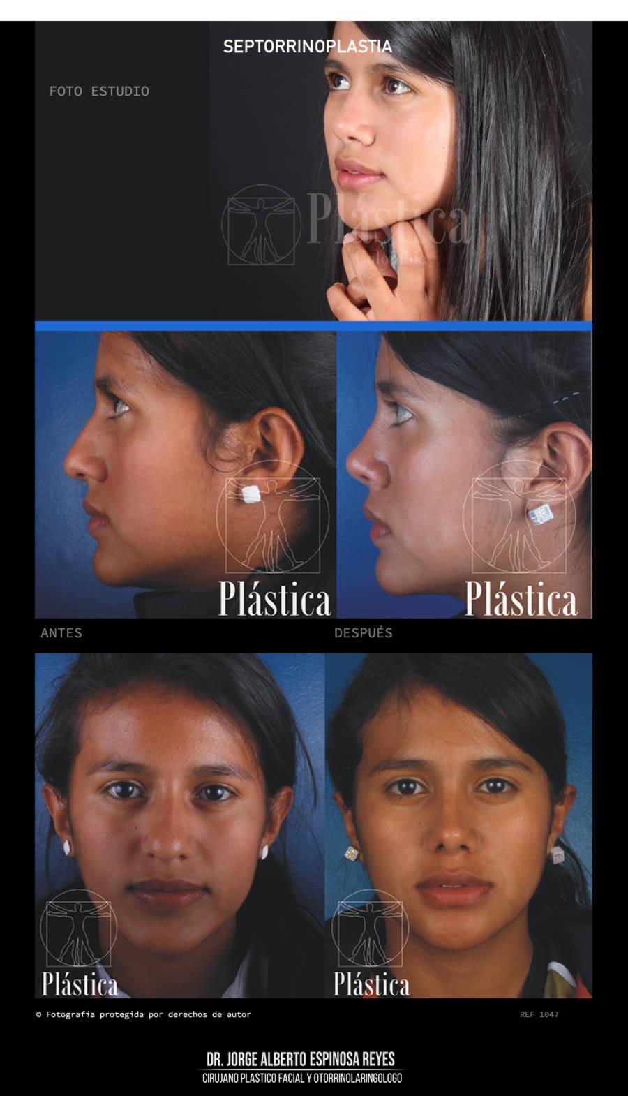 Fotografía Cirugía Nariz 1047
