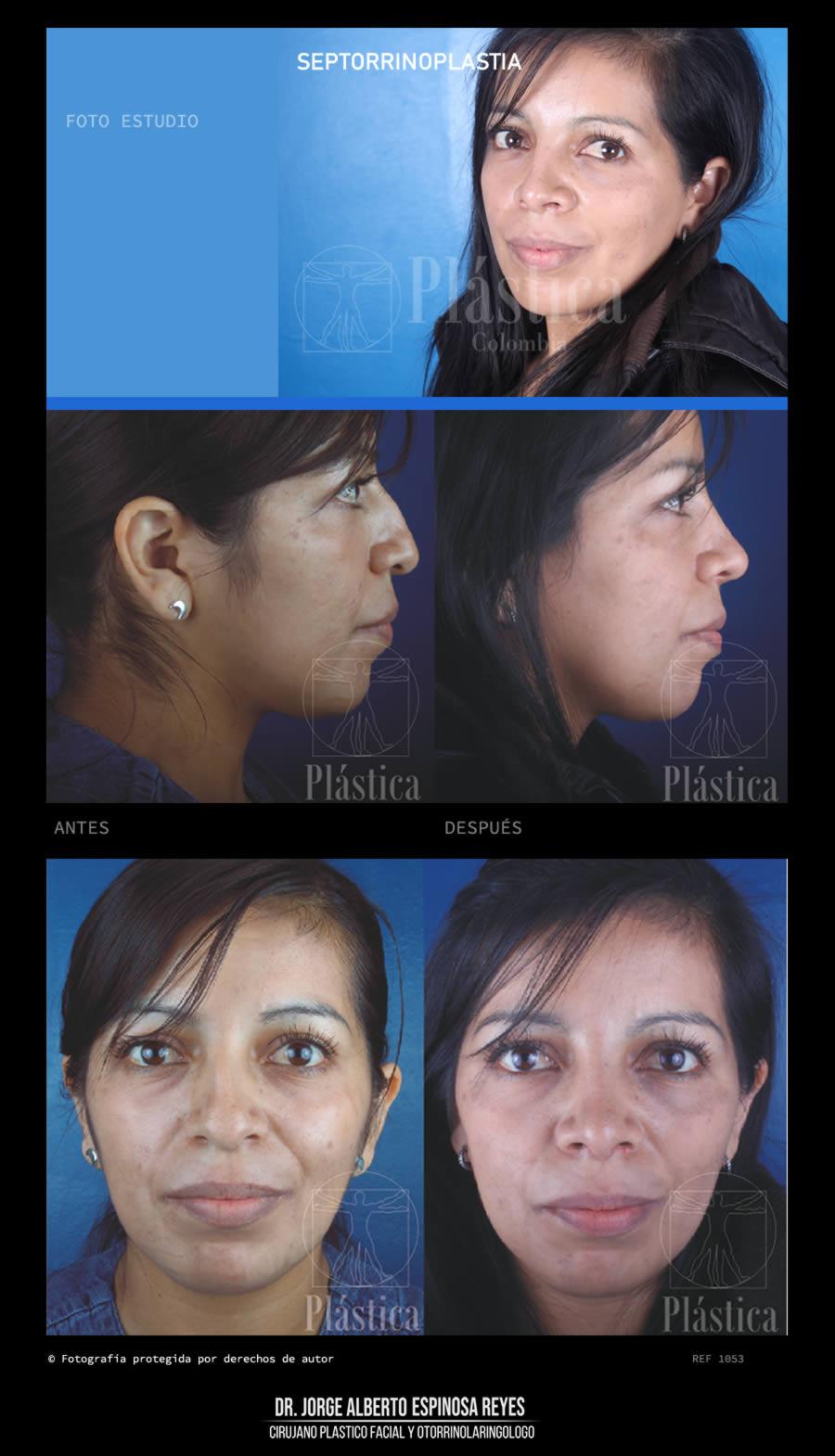 Fotografía Cirugía Nariz 1053