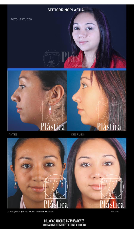 Fotografía Cirugía Nariz 1063