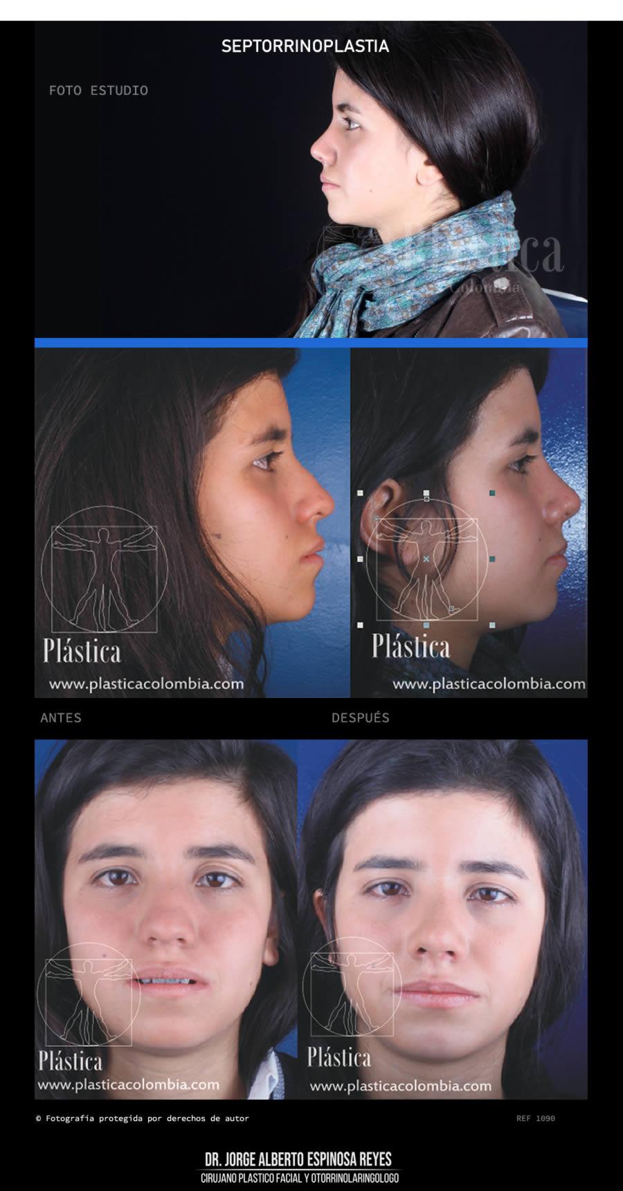 Fotografía Cirugía Nariz 1090
