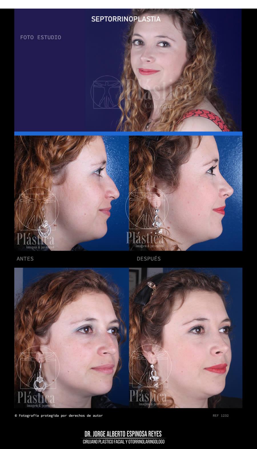 Fotografía Cirugía Nariz 1232