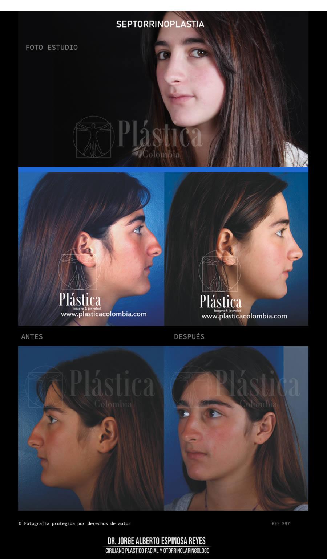 Fotografía Cirugía de Nariz 997