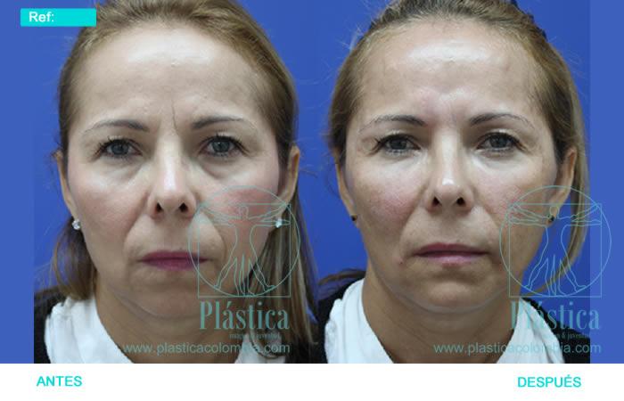 Fotografía lifting facial sin cirugía