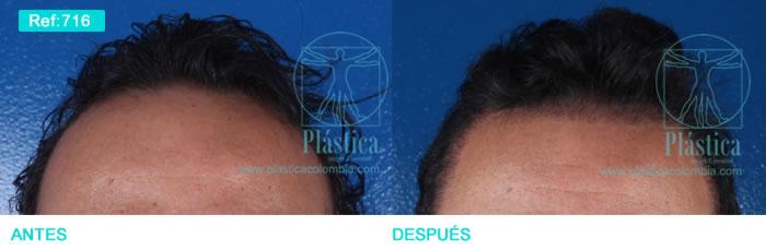 Caso pérdida cabello injerto
