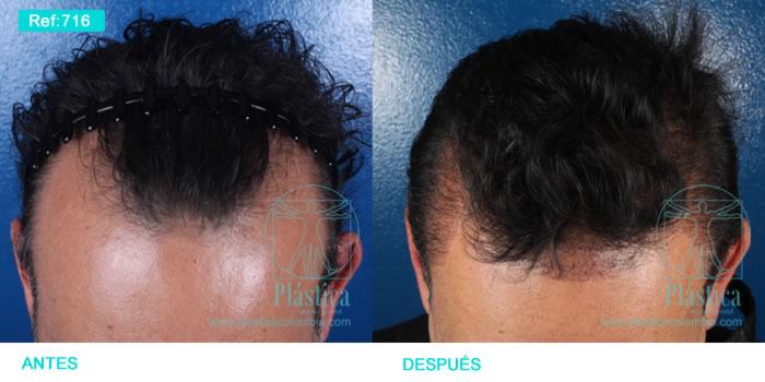 Caso pérdida de pelo injerto