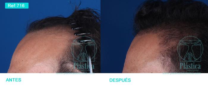 Caso pérdida pelo