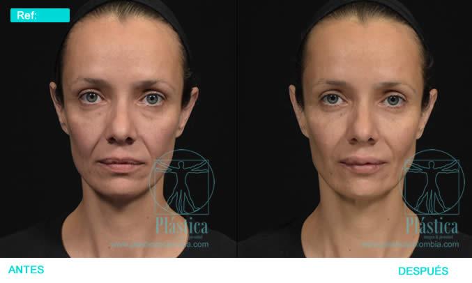 Foto ojeras antes y después