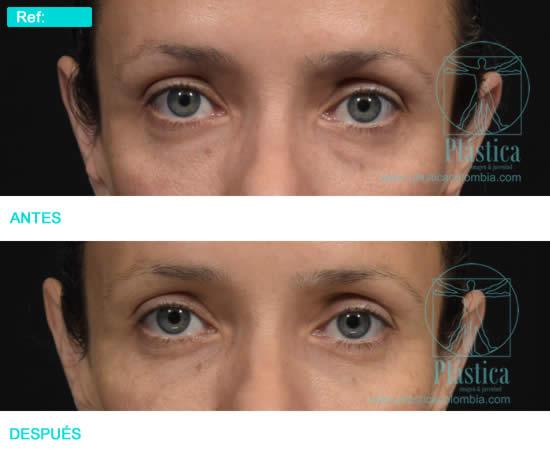 Foto Tratamiento Ojeras antes y después