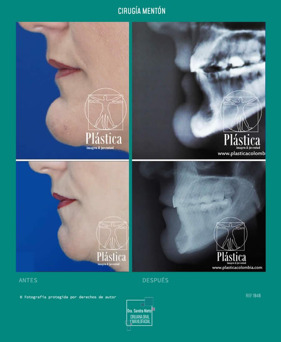 Foto Reducción mentón maxilar