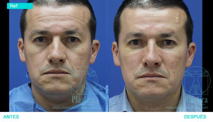 Fotografía Rejuvenecimiento no cirugía
