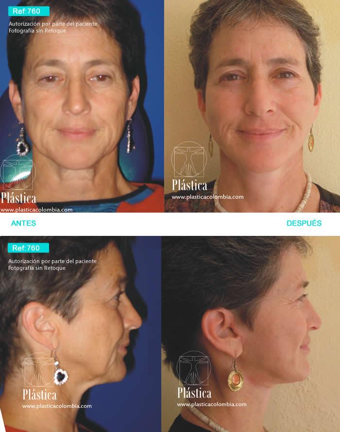 Rejuvenecimiento Facial 760