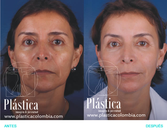 Fotografía Rejuvenecimiento con ácido hialurónico