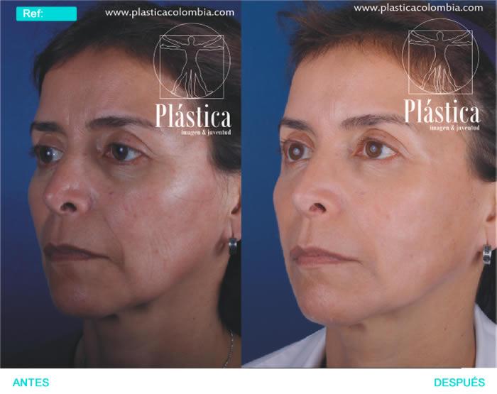 Fotografía Rejuvenecimiento con láser y ácido hialurónico