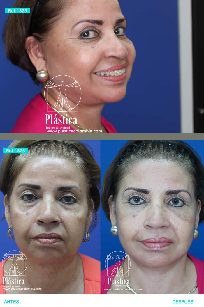 foto Rejuvenecimiento facial