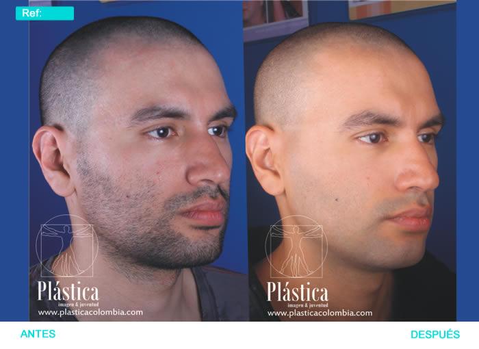Fotografía Rejuvenecimiento piel con láser