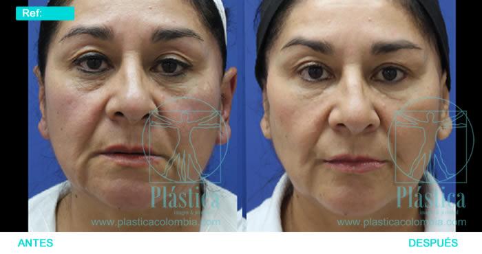 Fotografía Registro facial sin cirugía