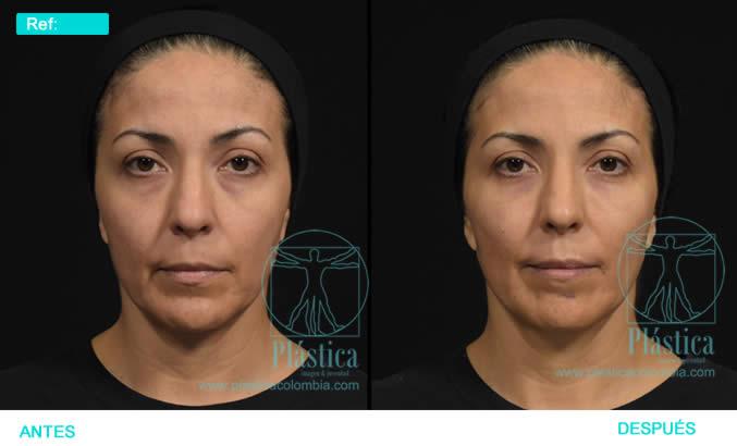 Foto relleno facial mujer