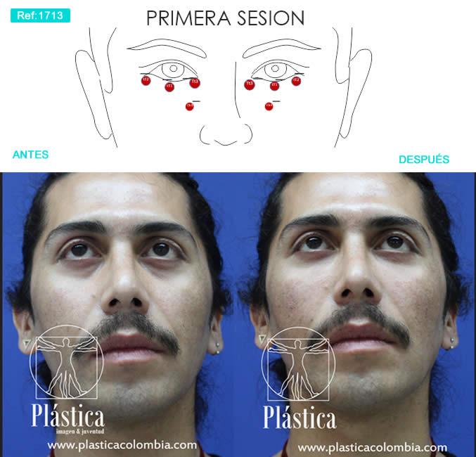 Foto rellenos faciales ojeras