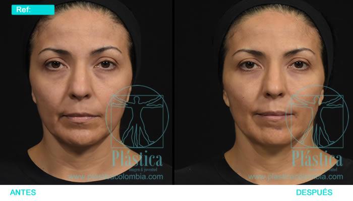 Fotografía tratamiento registro facial