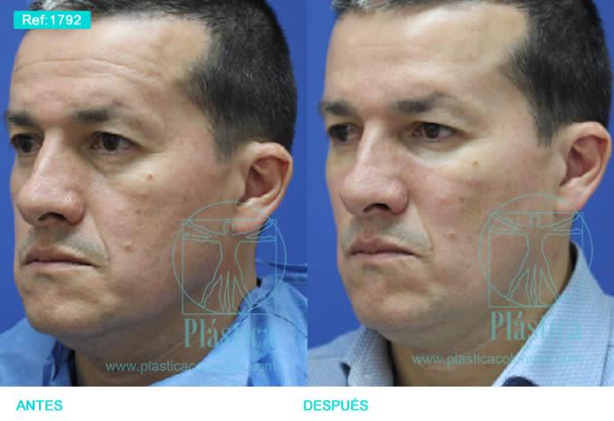 Foto rellenos faciales rostro