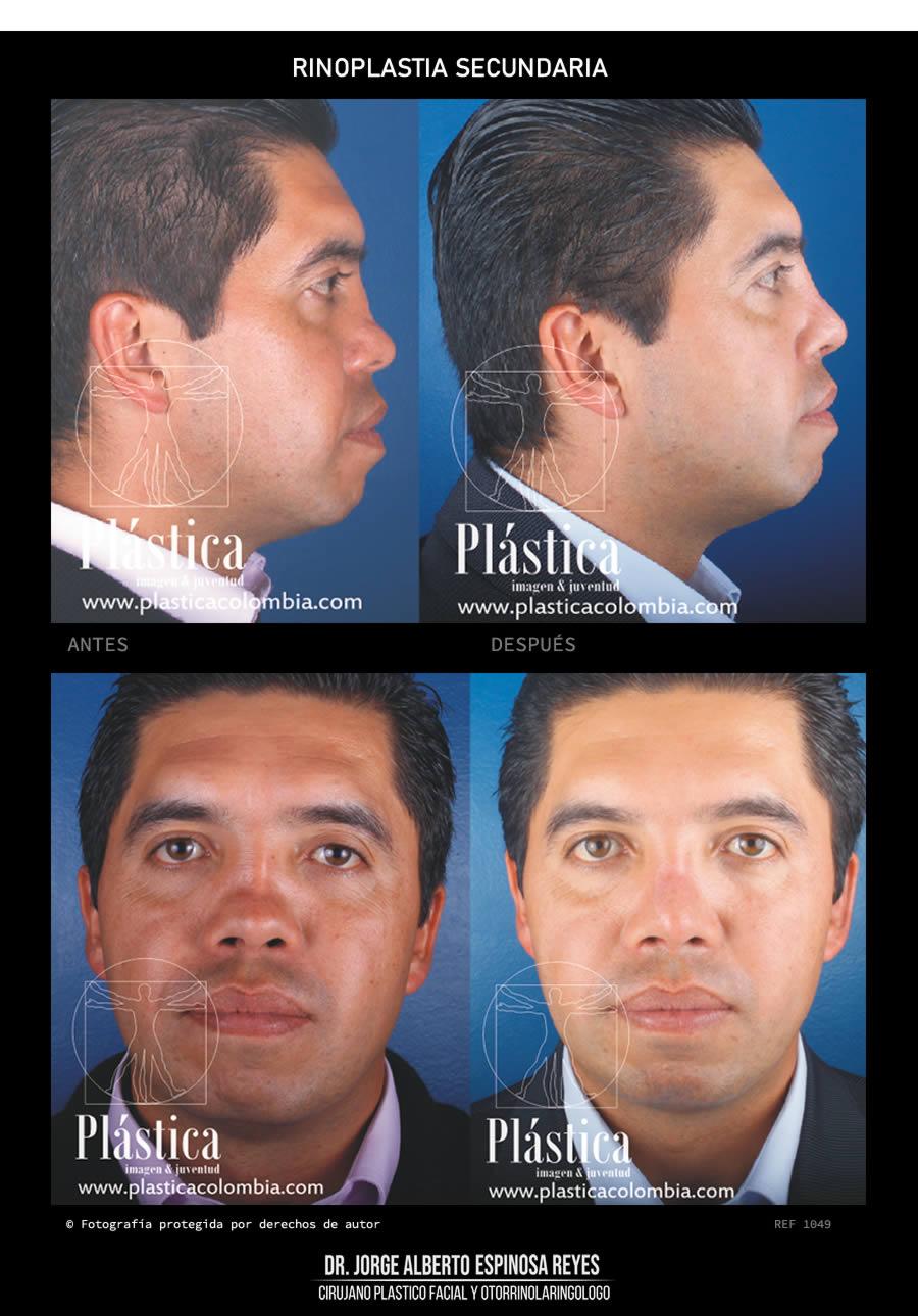 Rinoplastia Reconstructiva