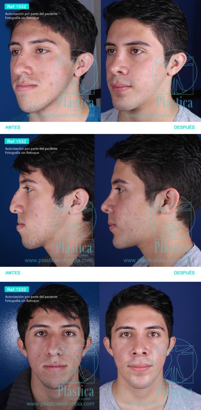 Caso real Rinoplastia con maxilofacial