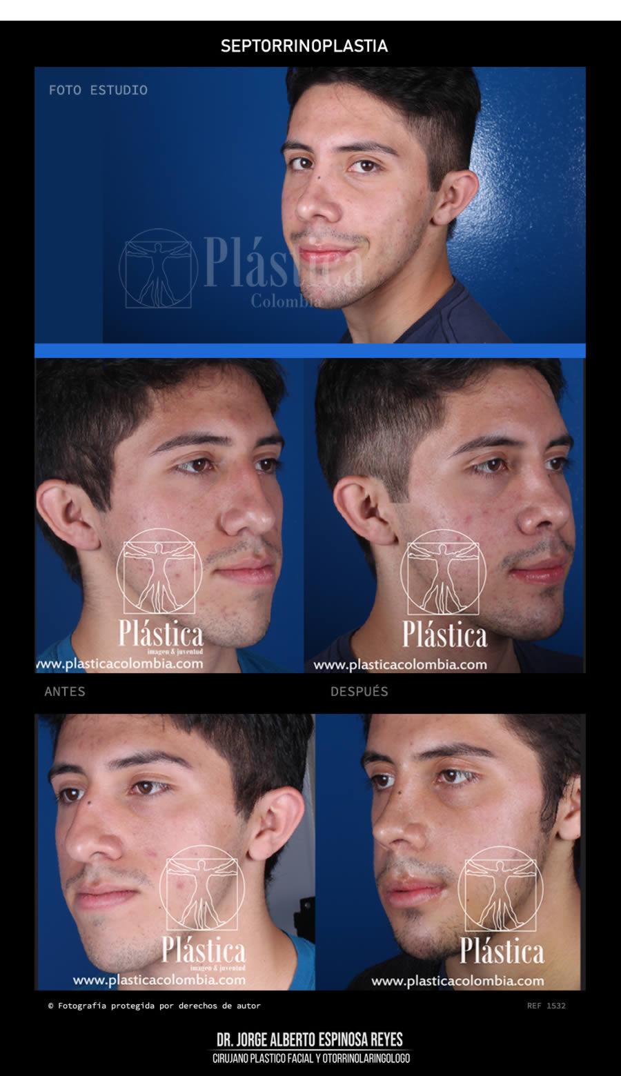 Fotografía Rinoplastia + Corrección Maxilofacial