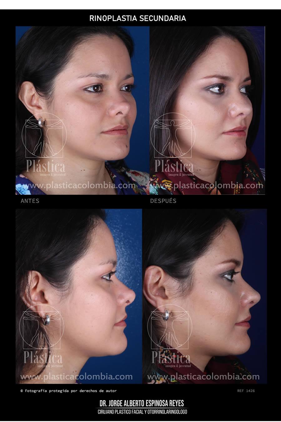 Fotografía Cirugía de Nariz 1290