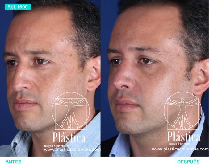 Foto Cirugía Nariz y ortognática 1600