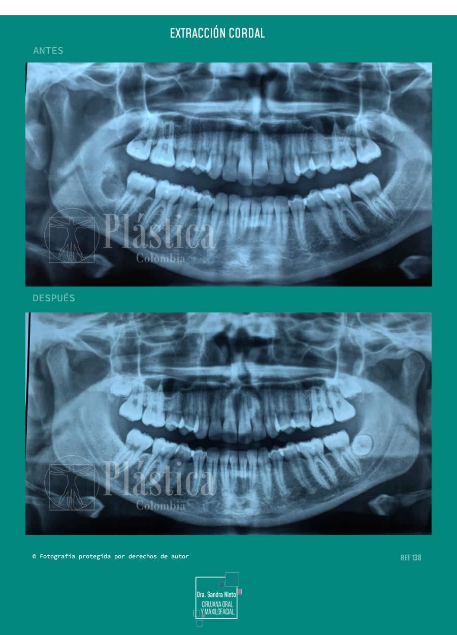 Radiografia Extracción de Cordales