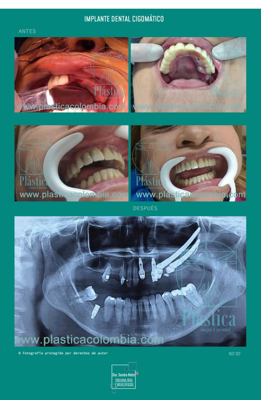 Foto Implante Dental Cigomático Precio