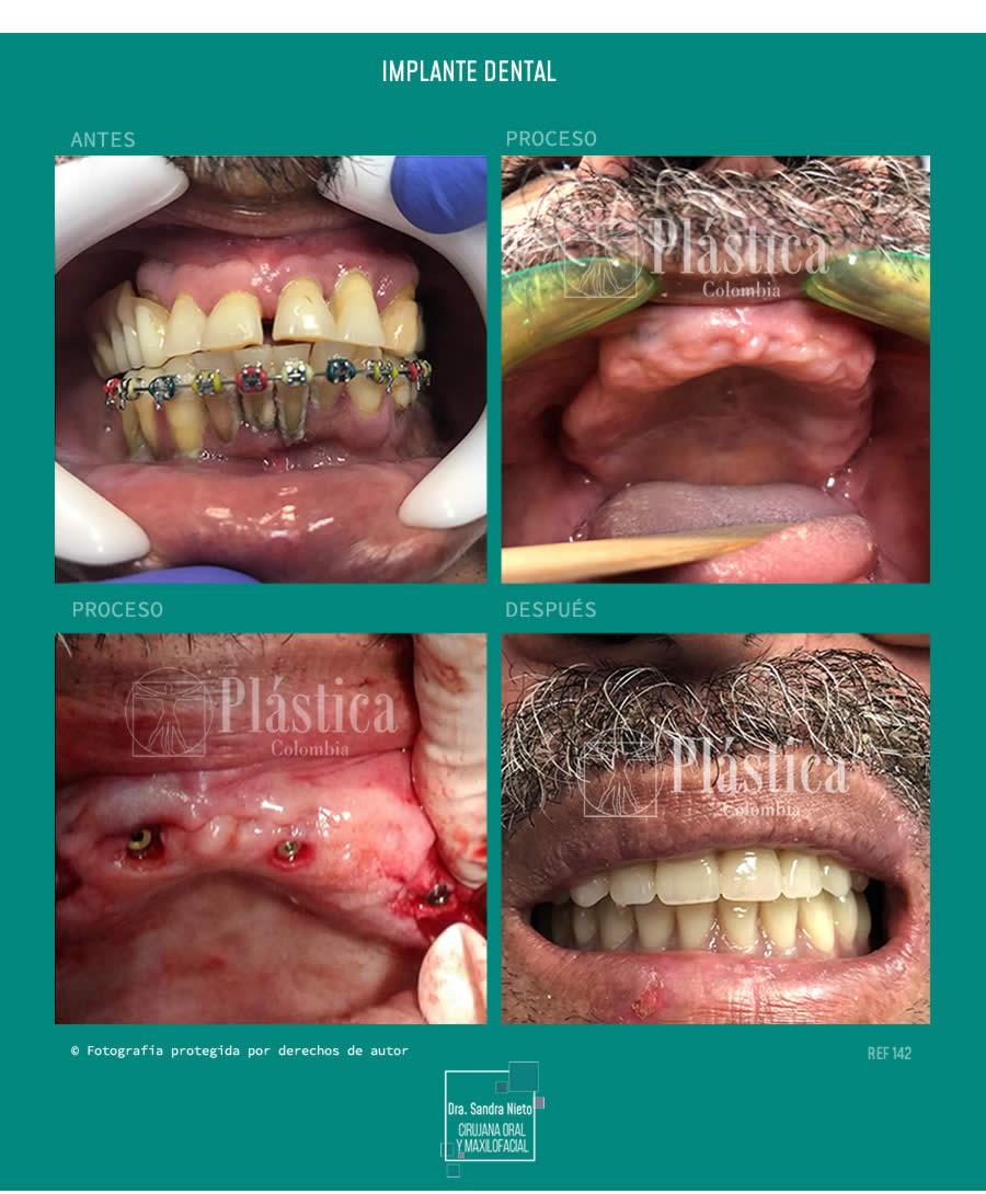 Implantes Dentales Antes y Después