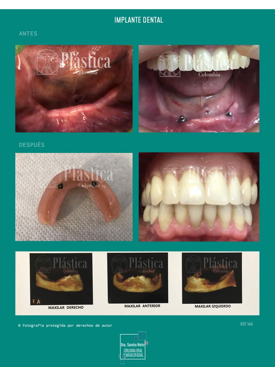 Implante dental caso