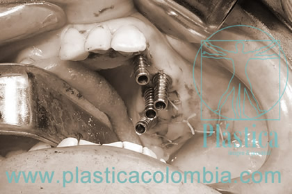 Foto implante sin injerto óseo