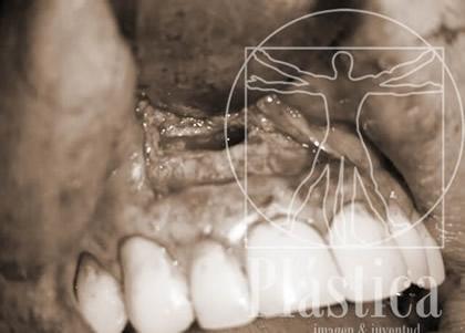 Patología Oral