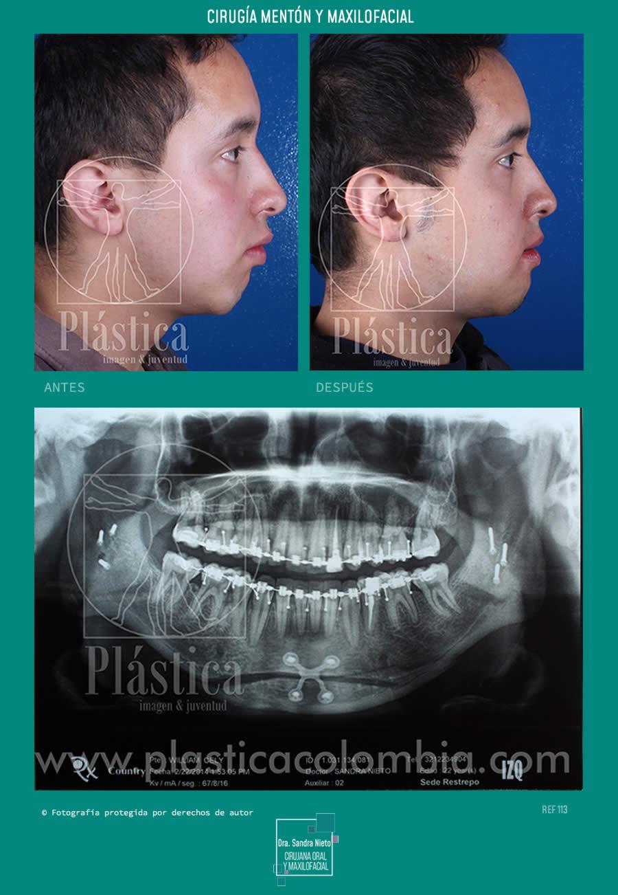 Caso Real mentoplastia con Maxilofacial