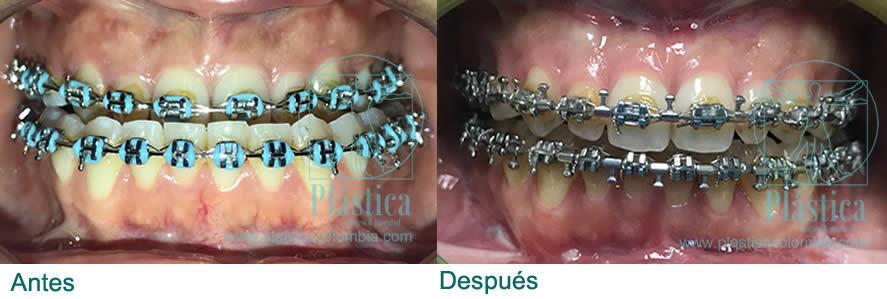 Fotografía Cirugia bimaxilar prognatismo y retrognatismo maxilar