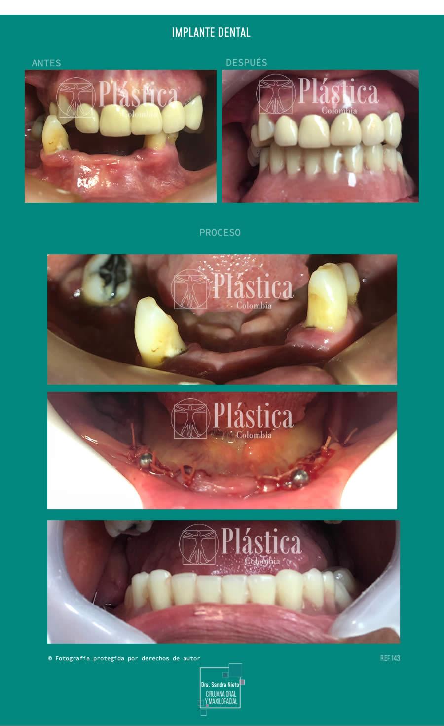 Implante dental one piece