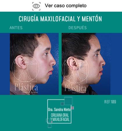Cirugía Mentón y Maxilofacial