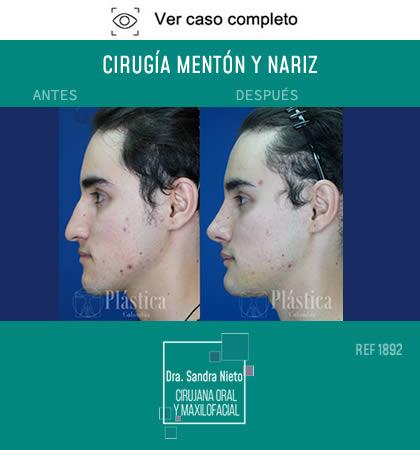 Cirugía Mentoplastia Rinoplastia