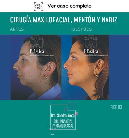 Cirugía Mentón y Nariz
