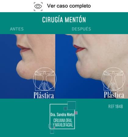 Cirugía Mentón