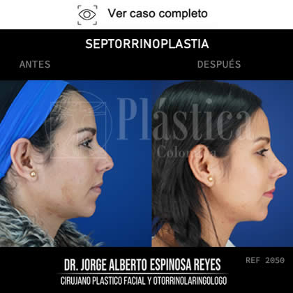 Foto Septorrinoplastia precio