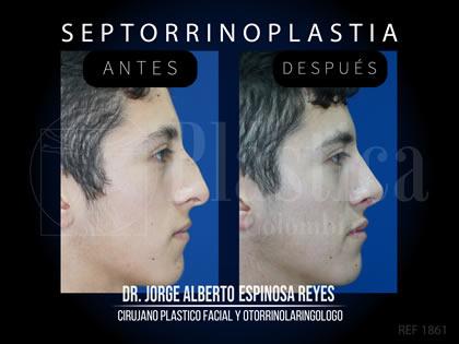 Foto Cirugía Nariz