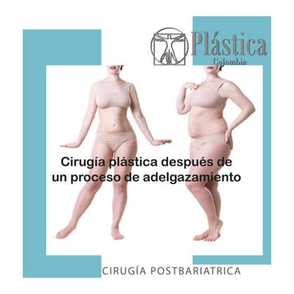 Cirugía Postbariátrica