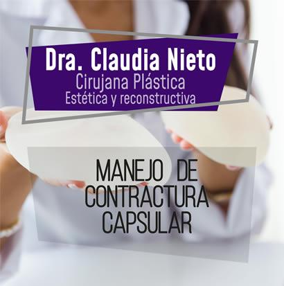 Contractura capsular