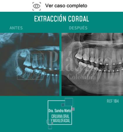 Foto Extracción Cordal Resultado