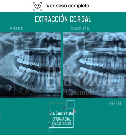 Foto Extracción Cordal Precio