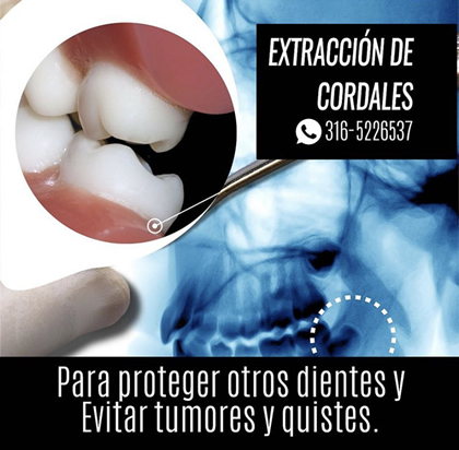 Quistes Cordales