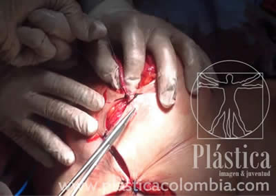 Cierre procedimiento mamoplastia reductivo